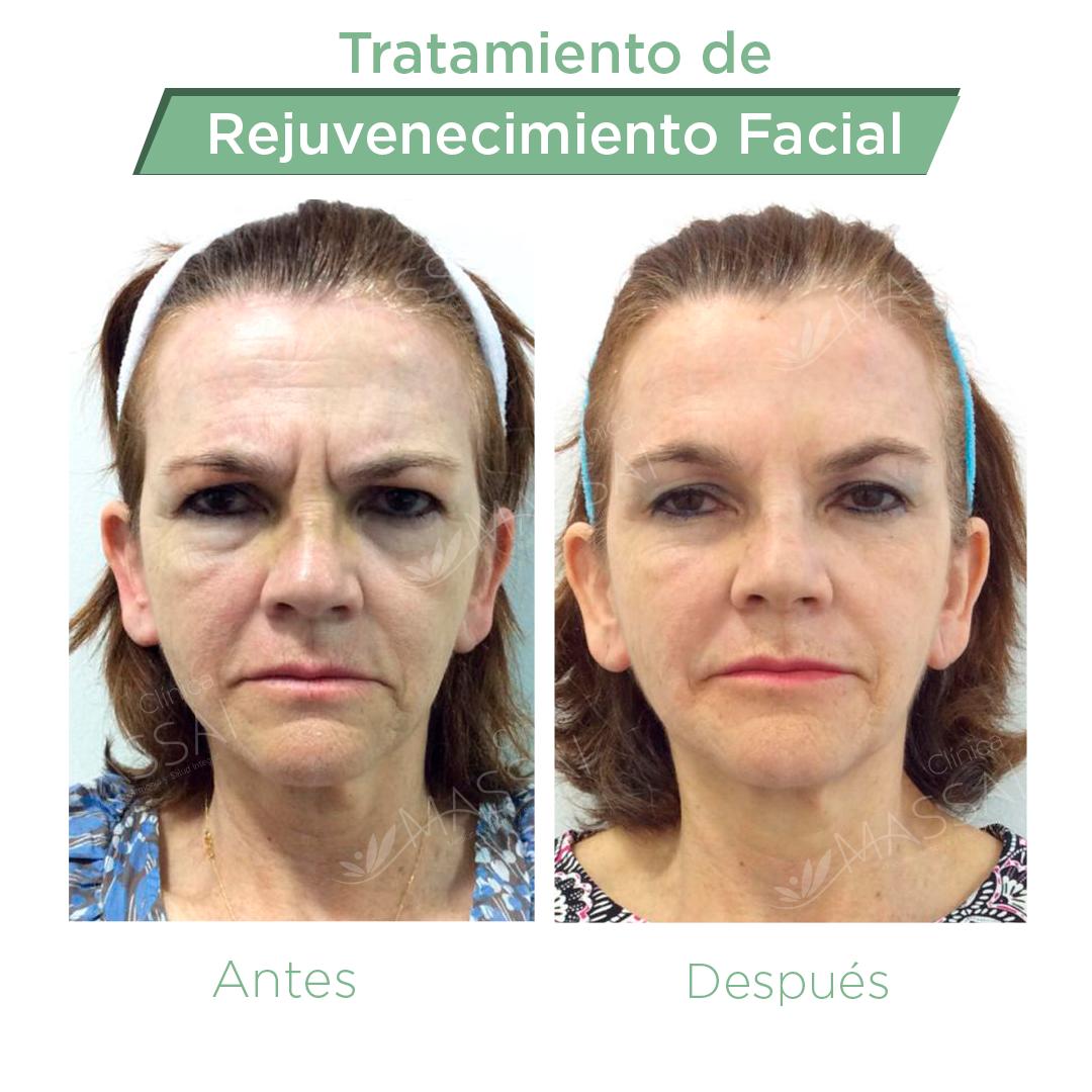 Rejuvenecimiento-Facial-Con-botox-y-acido-hialuronico