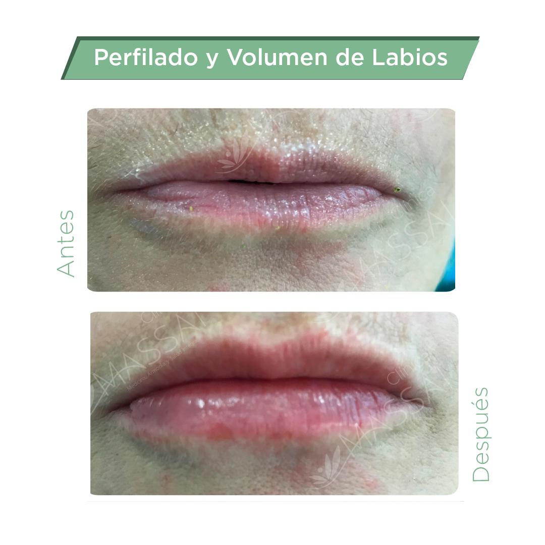 labios-1