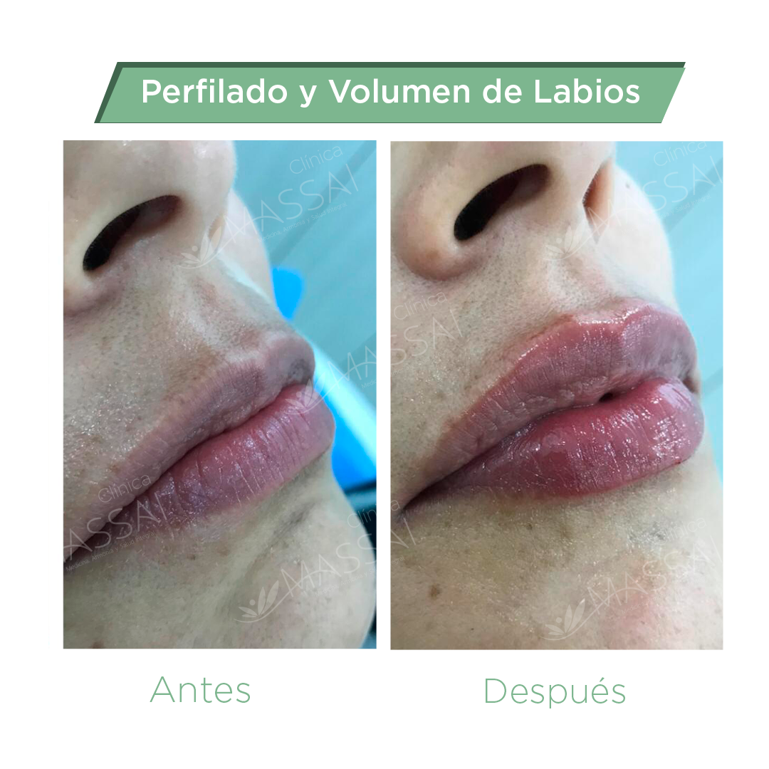 labios-3