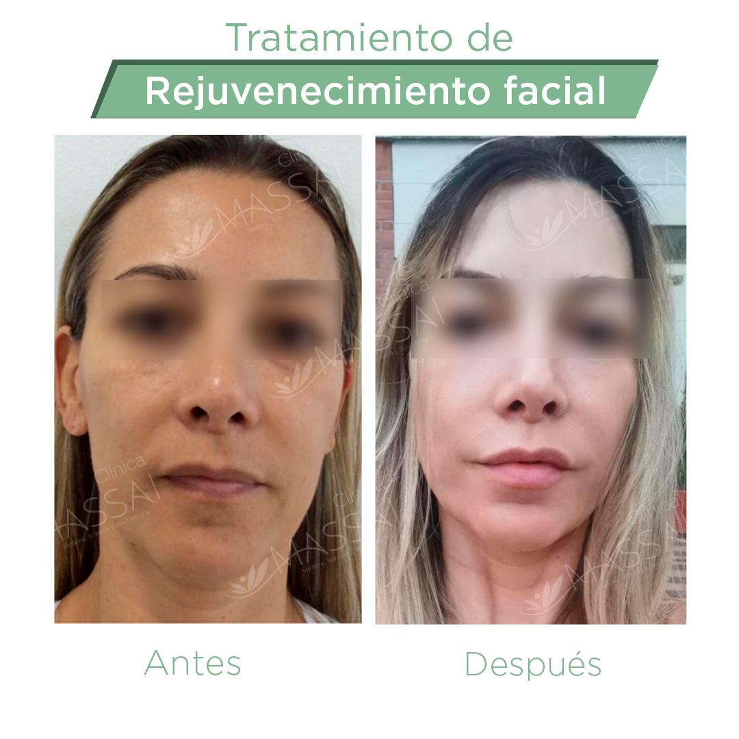 rejuvenecimiento-facial.2
